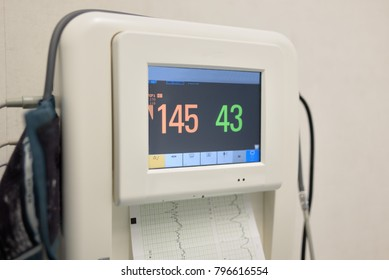 Fetal monitor printing the baby's heart beats and mother uterine contraction during delivery or birth in delivery. Medical concept.