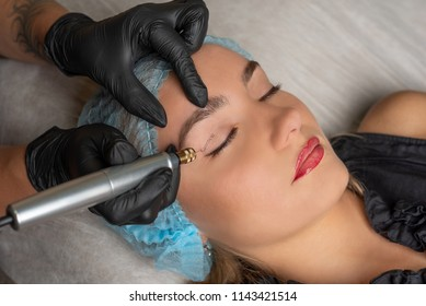 Fibroblast, plasmalifting procedure womens eyelid wrinkles lifting