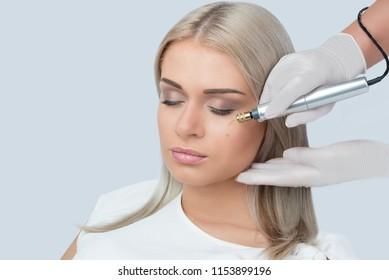 Fibroblast skin care procedure, birthmark remove.