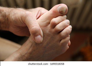 Figures out the nail, Accident nail trauma, bleeding toe nails, Foot ulcers figures out a nail, Onychocryptosis