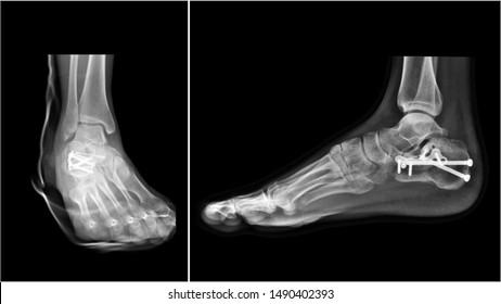 Film ankle X-ray radiograph showing heel bone broken (calcaneus fracture) which treated by open reduction and internal fixation(ORIF) with plate and screws. Medical technology and instrument concept.