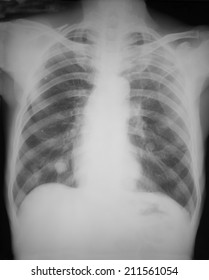 Film chest, antero-posterior view, of a 76 years old man with chronic bilateral costal borders pain: Demonstrated multiple nodules in both lower lungs.