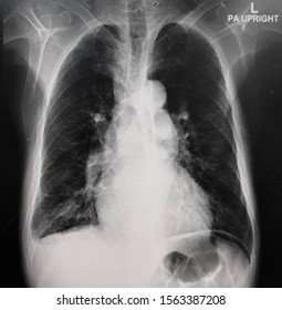 Film chest x-ray PA upright showed COPD with pulmonary hypertension