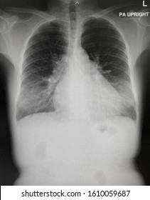 Film chest x-ray PA upright in heart failure patient