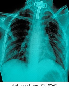 film chest X-ray PA upright : show human chest with tracheotomy tube
