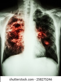 film chest x-ray show cavity at right lung,fibrosis & interstitial & patchy infiltrate at both lung due to Mycobacterium tuberculosis infection (Pulmonary Tuberculosis)