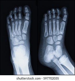 Film a child x-ray foot (AP,Oblique view) : show human's foot.
