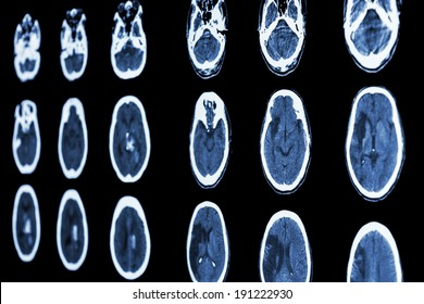 film CT scan of brain show ischemic stroke and hemorrhagic stroke