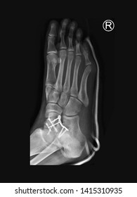film foot X-ray radiograph showing ankle bone fracture (talar neck fracture) which treated by open reduction and internal fixation (ORIF) with plate and screws. medical imaging concept