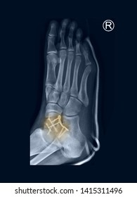 film foot X-ray radiograph showing ankle bone fracture (neck of talus fracture) which treated by open reduction and internal fixation (ORIF) with plate and screws. highlight on broken bone site