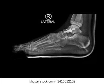 film lateral foot X-ray radiograph showing ankle bone fracture (talar neck fracture) which treated by open reduction and internal fixation (ORIF) with plate and screws. medical imaging concept.