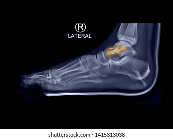 film lateral foot X-ray radiograph showing ankle bone fracture (neck of talus fracture)which treated by open reduction and internal fixation (ORIF) with plate and screws. highlight on broken bone site