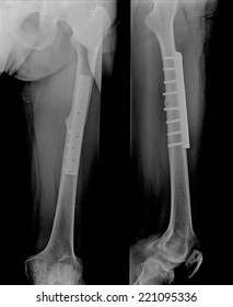 film leg AP/lateral : show fracture shaft of tibia and fibular (leg's bone). patient was operated and insert plate and screw for fix leg's bone