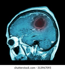Film MRI of brain with brain tumor ( Sagittal plane , side view , lateral view ) ( Medical , Health care , Science Background )