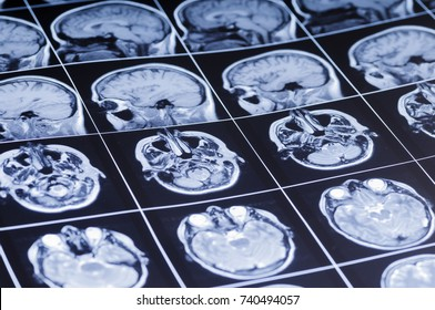 Film with pictures of the brain. MRI
