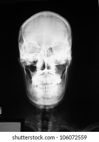 Film skull antero-posterior (AP) view in the patient with mild head injury from car accident: demonstrated closed fracture zygoma, left side.