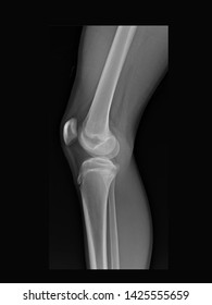 Film X ray knee radiograph show Osgood Schlatter disease (OSD). Many other Xray imaging in my portfolio.