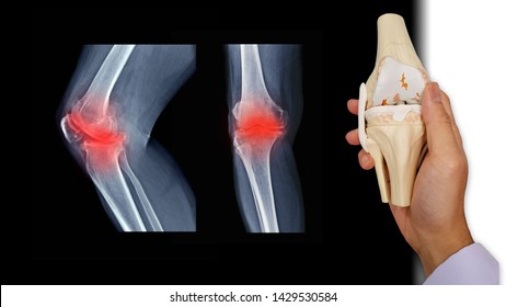 Film X ray knee radiograph show osteoarthritis disease (OA knee disorder). Doctor 's hand holding model of arthritis knee. Medical technology concept.