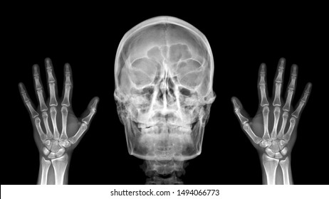 Film X ray radiograph show human anatomy of skull bone and skeleton which skeletal hand show sign of Peekaboo (Peek a boo) and haunt. Medical joke in Halloween concept