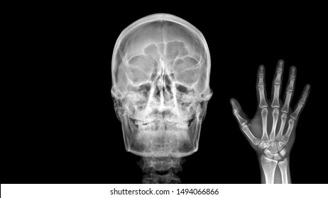 Film X ray radiograph show human anatomy of skull bone and skeleton which skeletal hand show sign of saying Hello. Medical imaging in orthopedic and radiology concept