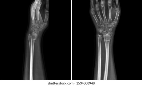 Film X ray wrist radiograph show wrist bone broken (torus or buckle fracture). The patient has wrist pain, swelling and deformity. Medical imaging and technology concept