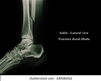 Film x-ray ankle (AP,Lateral view) : Fracture distal fibula with mild displacement.