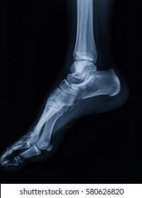 film x-ray ankle lateral