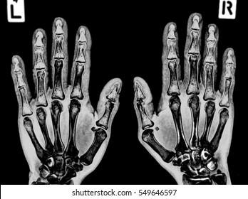 film x-ray both hand