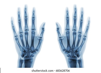 Film x-ray both hand AP show normal human hands on white background ( isolated ) . Front view .