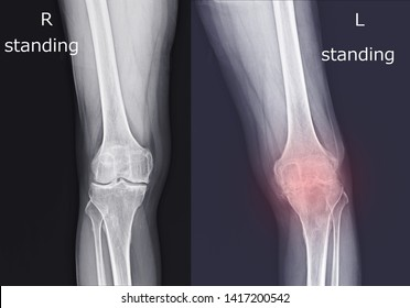 Film x-ray both knee( front view ) show narrow joint space( joint cartilage loss ) on red color mark.