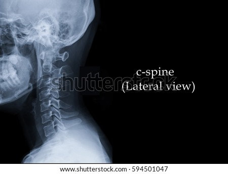 Film Xray Cspine Lateral View Show Stock Photo (Edit Now) 594501047 ...