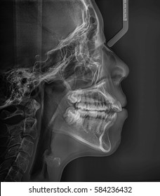 Film x-ray dental (Lateral cephalogram view) : show human's Dental.