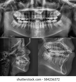 Film x-ray dental (Panoramic , Lateral cephalogram view) : show human's Dental.
