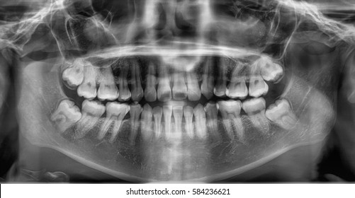 Film x-ray dental (Panoramic view) : show human's Dental.