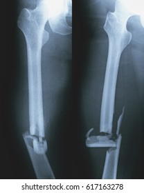 Film x-ray femur (AP , Lateral view) : Fractures at right femoral shaft are observed.