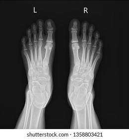 film xray foot