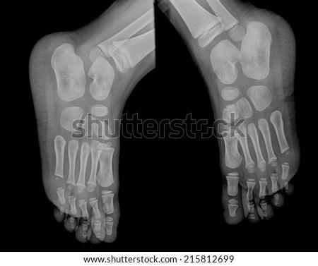 Film Xray Foot Ap Lt Rt Stock Photo Edit Now 215812699 Shutterstock