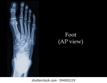 Film x-ray foot (AP view) : show normal human's foot.