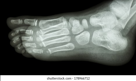film x-ray foot lateral : show normal child's foot