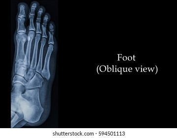 Film x-ray foot (Oblique view) : show normal human's foot.