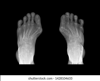 Film x-ray foot radiograph show both Hallux valgus deformity or Bunion disease. The patient has big toe pain symptom. This cause shoe wearing and cosmetic problem. medical imaging concept