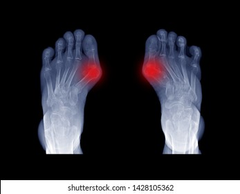 Film x-ray foot radiograph show both Hallux valgus deformity or Bunion disease. The patient has big toe pain symptom from irritate and inflammation. This cause shoe wearing and cosmetic problem.