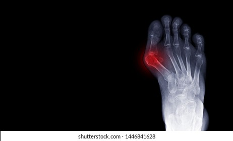 Film x-ray foot radiograph show Hallux valgus deformity or Bunion disease with free copy space and dark background. The patient has toe pain symptom. This cause shoe wearing and cosmetic problem.