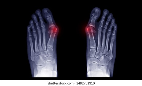 Film X-ray foot radiograph show both Hallux valgus deformity or Bunion disease. The patient has big toe pain symptom ,shoe wearing and cosmetic problem. Highlight on painful area. Medical concept