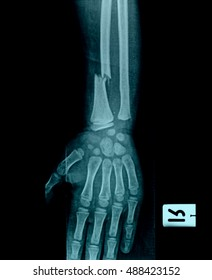film x-ray forearm AP : show fracture shaft of ulnar