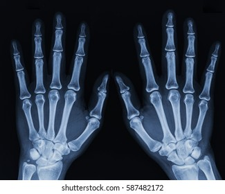 Film x-ray hand AP view : show human's hand.