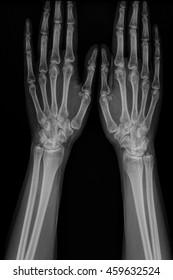 Film x-ray hand of man with arthritis