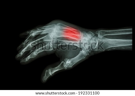 Film Xray Hand Oblique Fracture 3rd Stock Photo (Edit Now) 192331100 ...