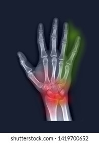 film x-ray hand radiograph show normal anatomy of bone and joint. The patient has symptom wrist pain (red label), numbness and tingling(yellow label) from ulnar tunnel syndrome(Guyon tunnel disease).