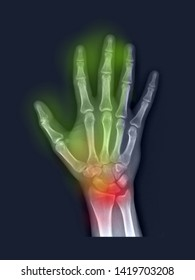 film x-ray hand radiograph show normal bone and joint. The patient has wrist pain (red label), numbness and tingling(yellow label) from carpal tunnel syndrome disease(CTS, median nerve entrapment)